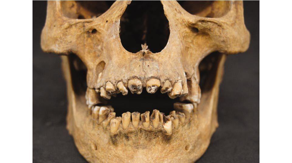 Egy 17. dinasztiabeli (Kr.e. 1550 körüli) múmia fogait kitörték, valószínűleg a bebalzsamozási eljárás során.