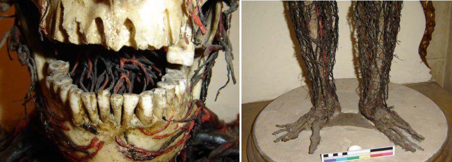Bal: A férfinek csupán 16 foga van, közülük néhány hosszanti irányban eltört. Jobb: A női test egy talapzathoz van erősítve a lábainál fogva.