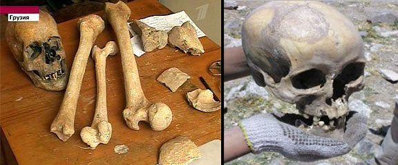 A Borjomi koponya és csontok a középütt látható normál emberi csont társaságában.