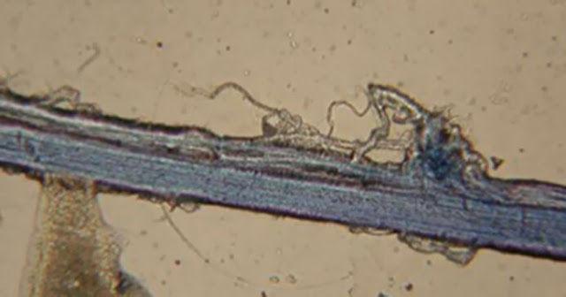 A kutatók speciális festékanyagot injekcióztak be, amely megfestette a meridiánokat.